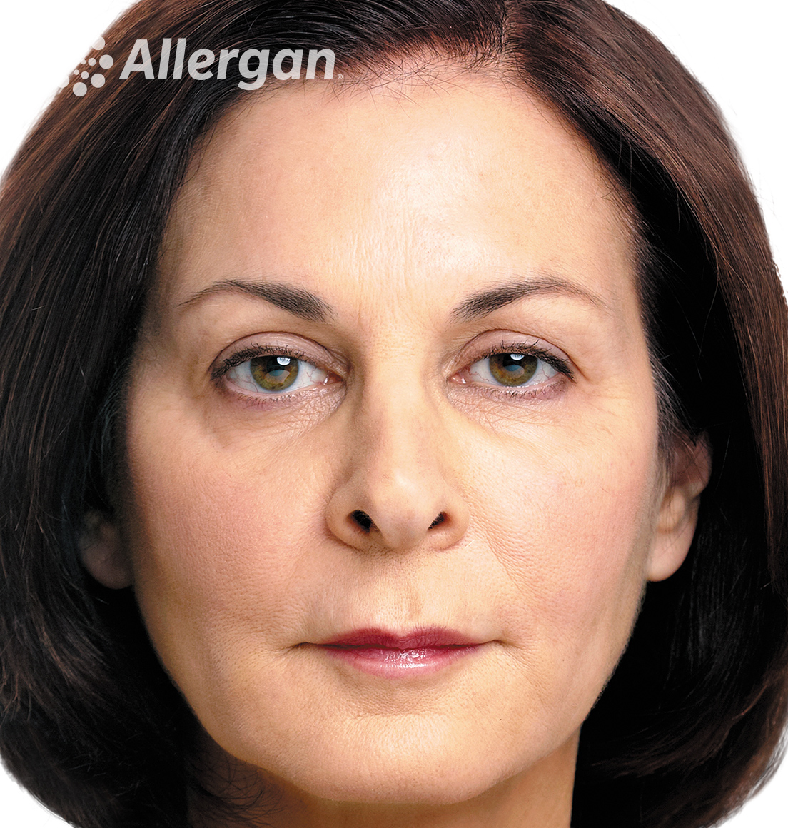 Juvederm | Caucasian female model Brunette 3 After