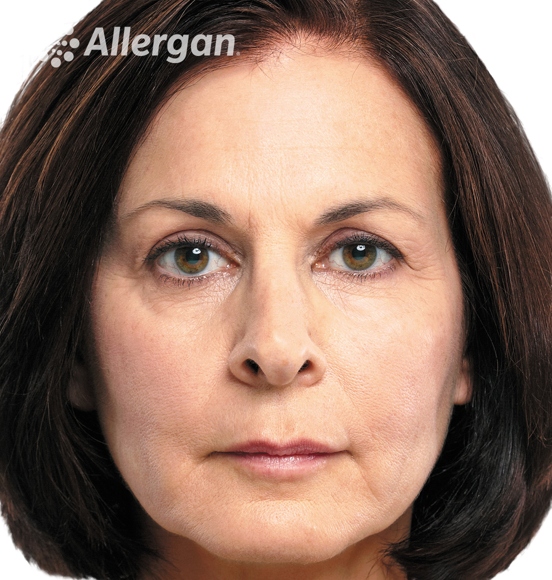 Juvederm | Caucasian female model Brunette 3 Before